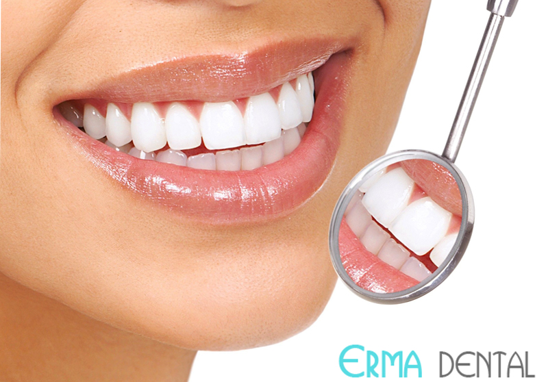 cheap teeth whitening and bleaching in Bulgaria